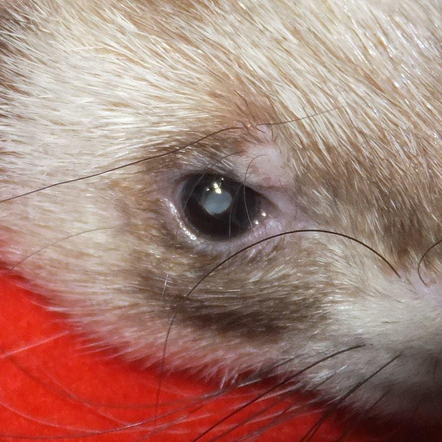 a1249-cataract